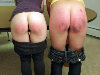 marked butts from a hard paddling