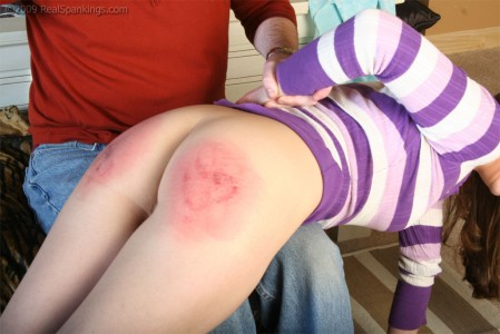 Severe bruising from a spanking with the brush