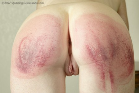 bruised bottom from the hairbrush