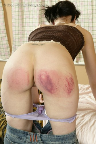 bare bottom bruised from paddling